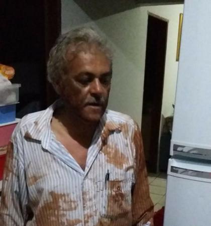 Vereador Cido Medeiros, agredido enquanto fazia campanha política - Crédito: Divulgação