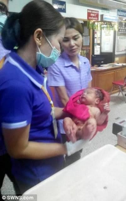Bebê sobrevive depois de ser esfaqueado 14 vezes e ser enterrado vivo pela própria mãe